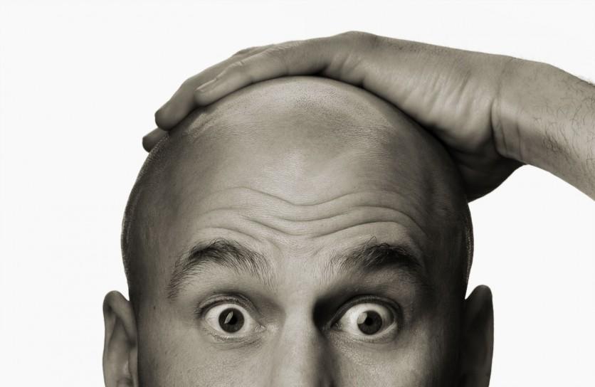 mimpi kepala botak