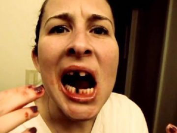 maksud mimpi gigi tercabut